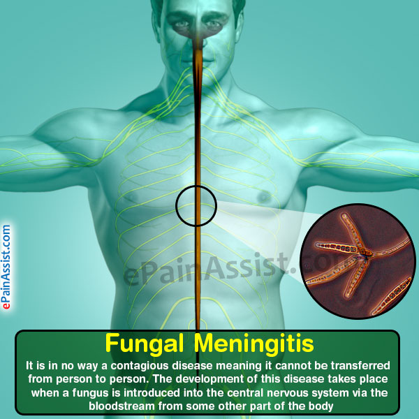 Meningitis Is Usually Caused By A Viral Infection But: Fungal Meningitis