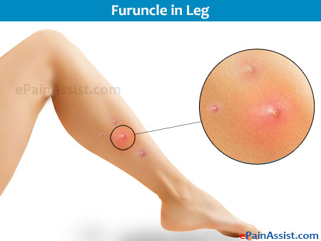 Partial Leg Pain Caused by Skin Diseases and Lesions
