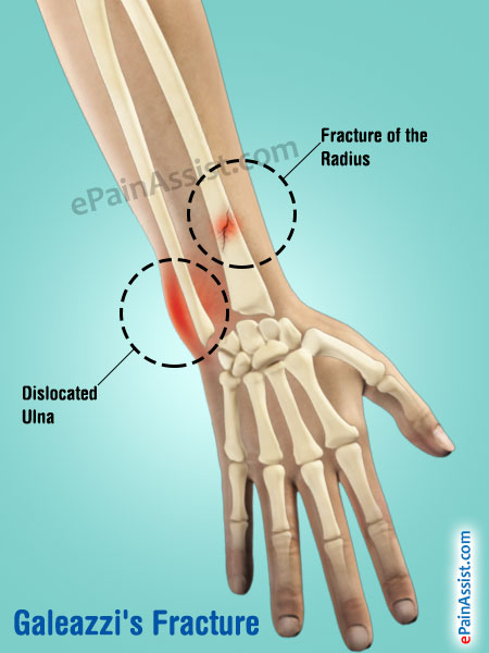 Galeazzi's Fracture