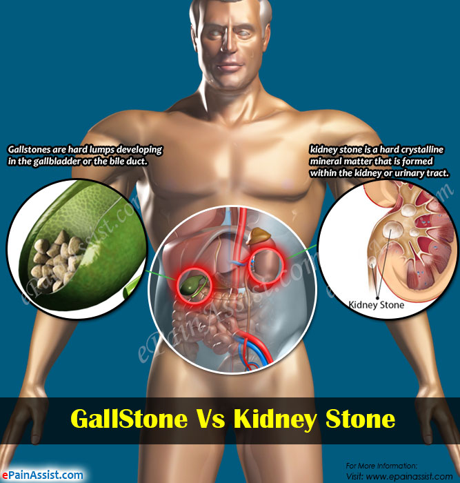 GallStone Vs Kidney Stone