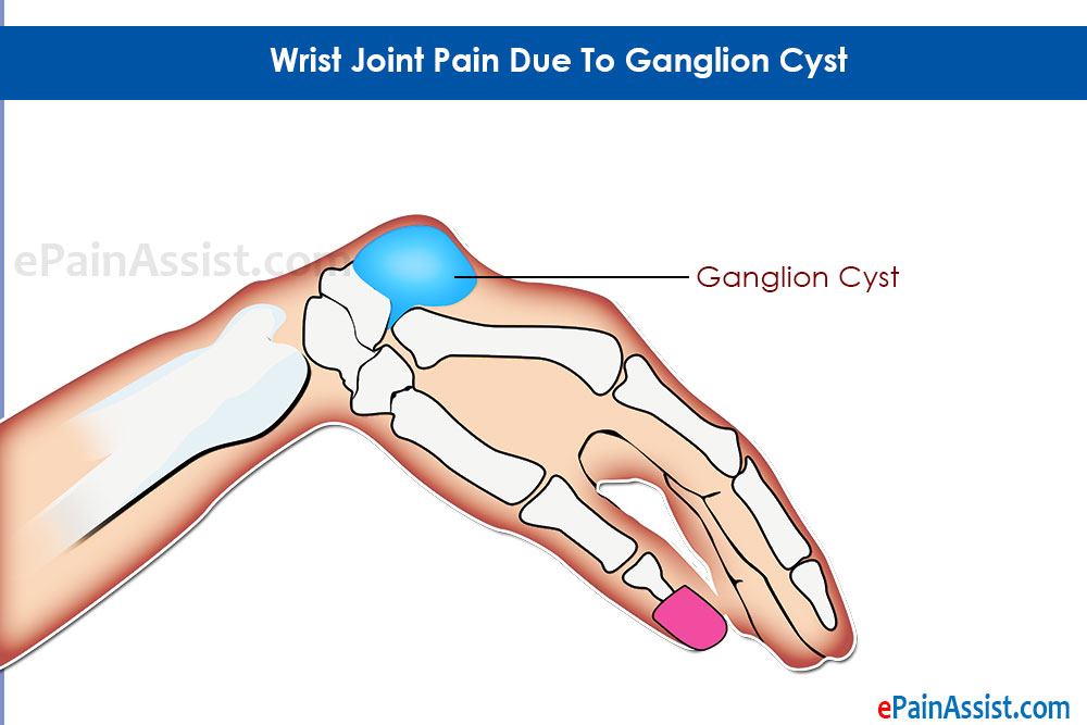 Wrist Joint Pain Due To Ganglion Cyst