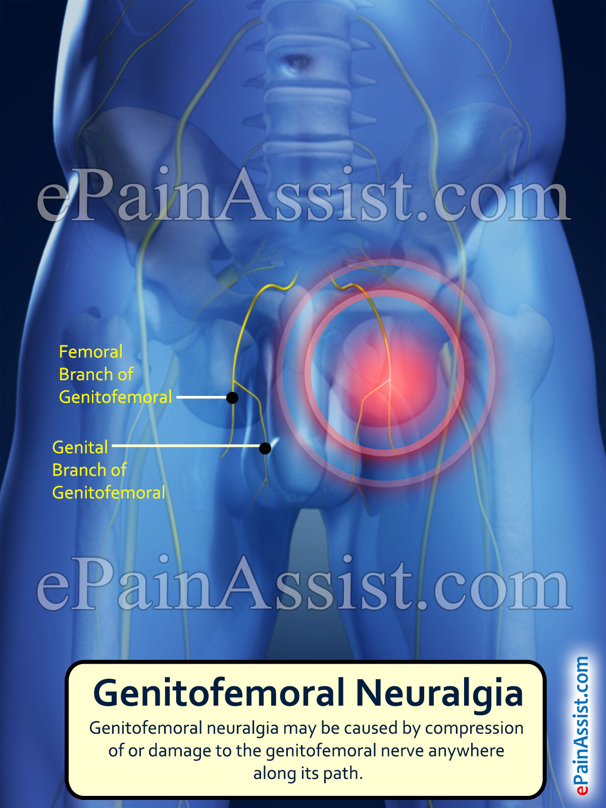 genitofemoral neuralgia: treatment, causes, symptoms, types, Muscles