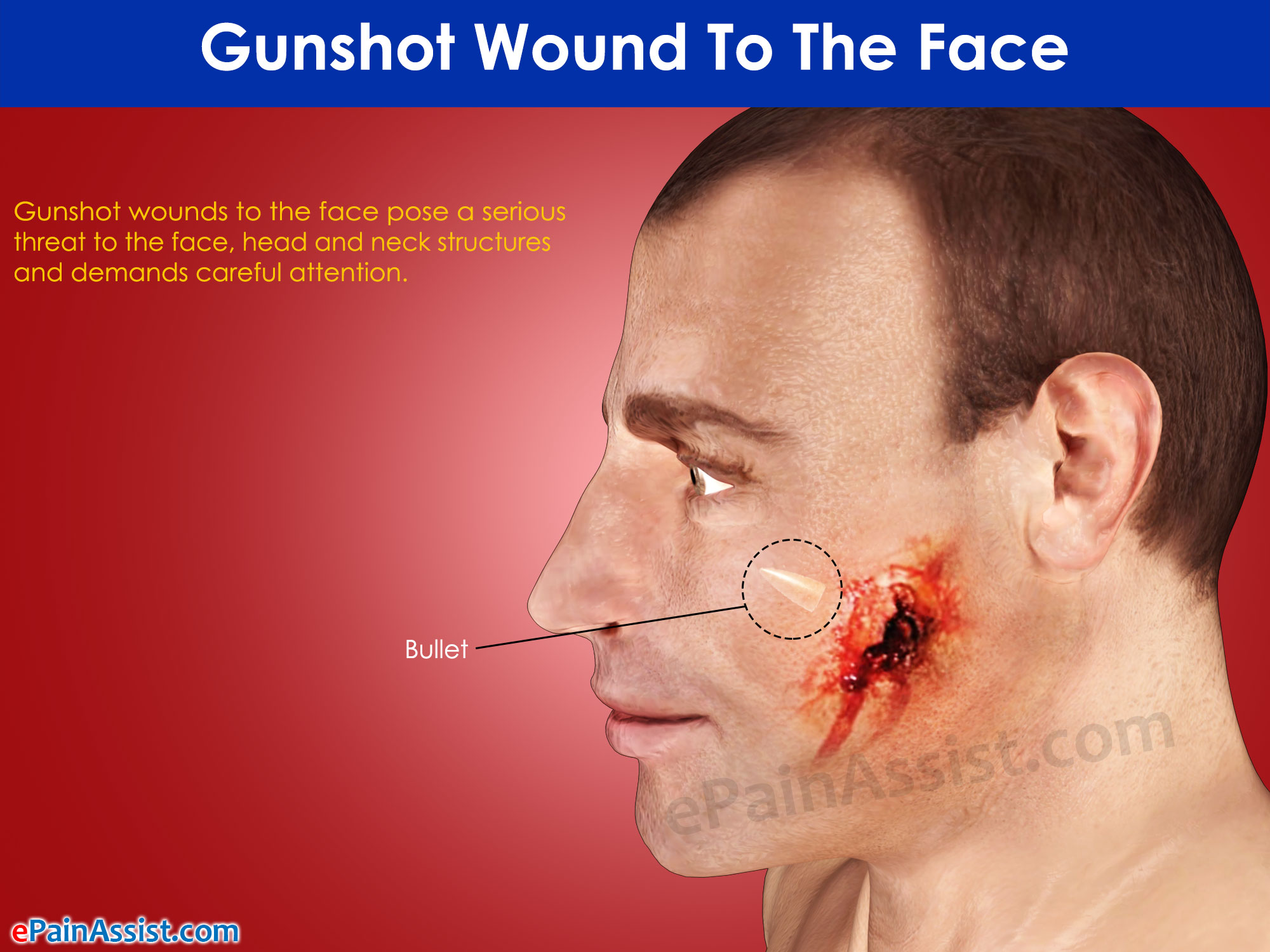 Gunshot Wound To The Face
