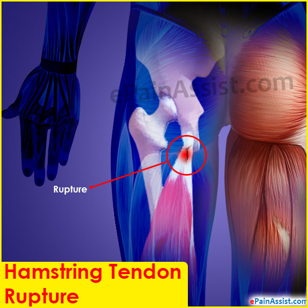 Hamstring Tendon Rupture