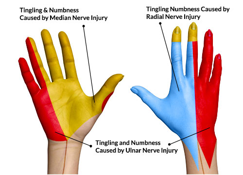 Healing Hands: Do Fingers Tell Tales?