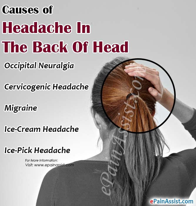 Causes of Headache In The Back Of Head