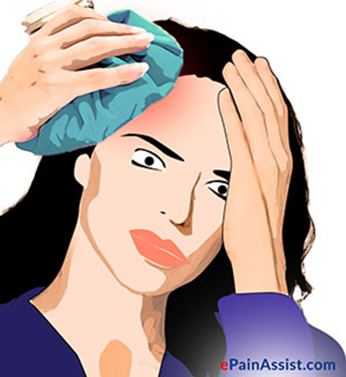 Headache Preventive Treatment