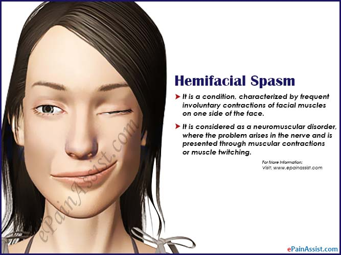 Treatment for facial tics