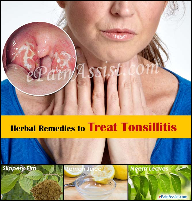 Herbal Remedies to Treat Tonsillitis
