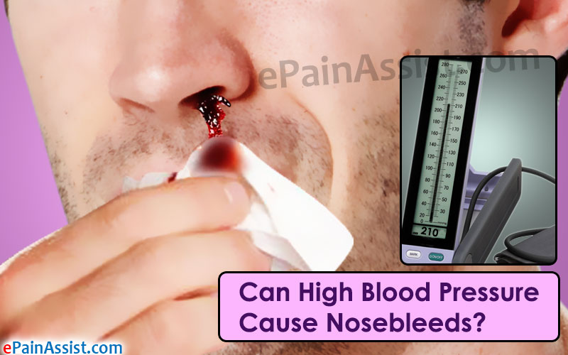 High Blood Pressure Cause Nosebleeds