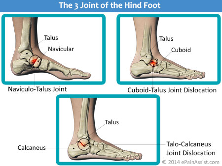 Hind-Foot Joint Dislocation