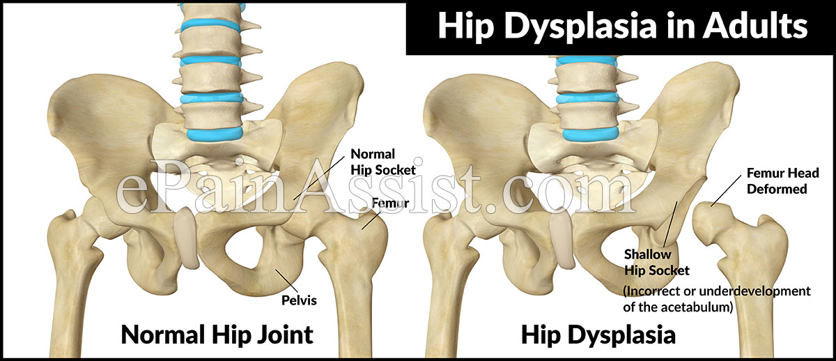 Hip dysplasia in adults signs and symptoms
