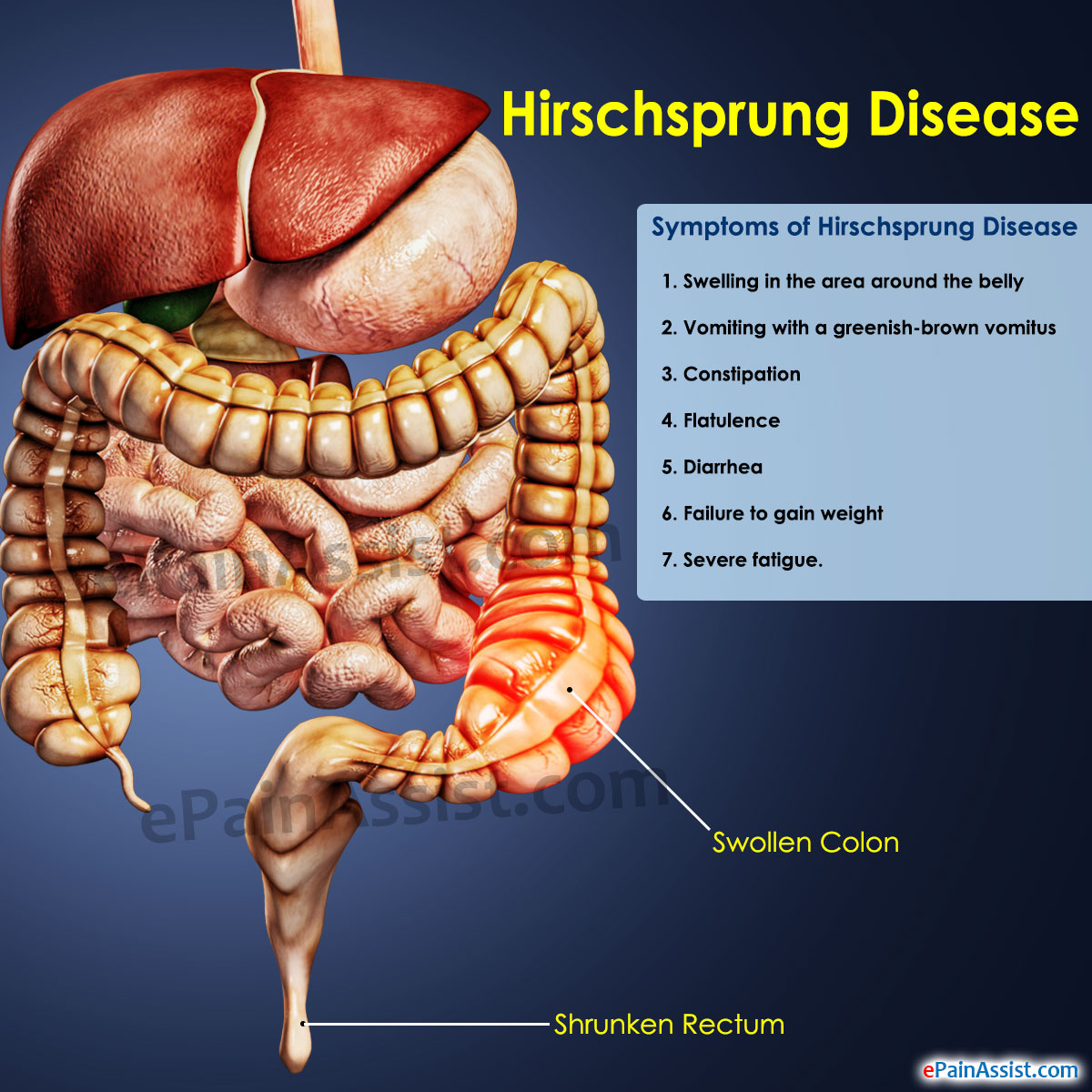 Hirschsprung S Disease Treatment Home Remedies Childs