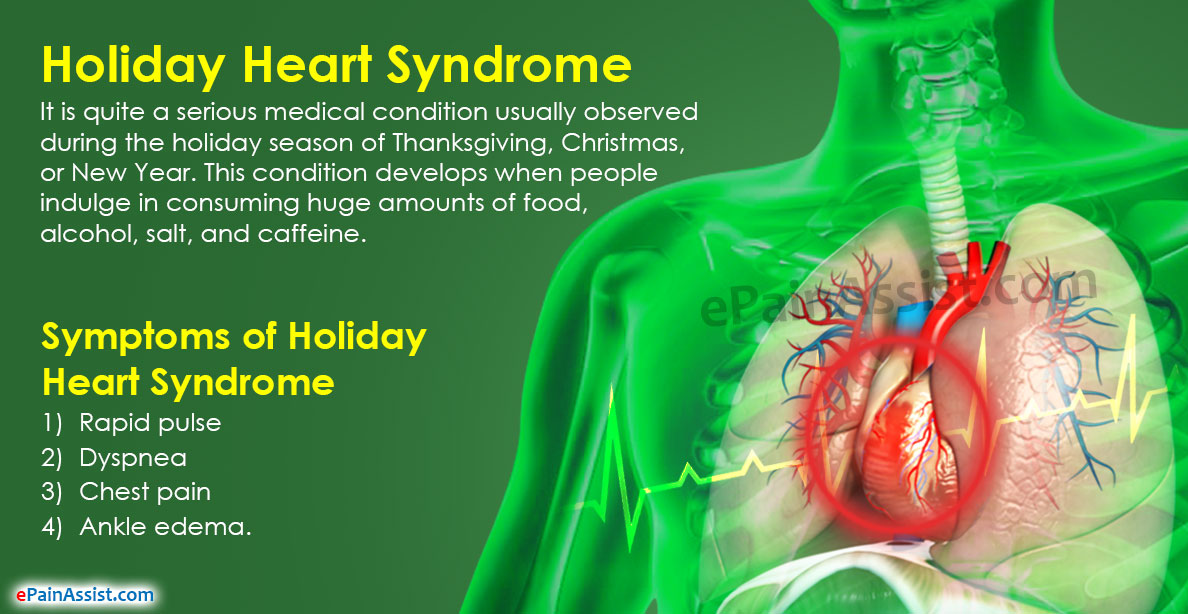 Holiday Heart Syndrome