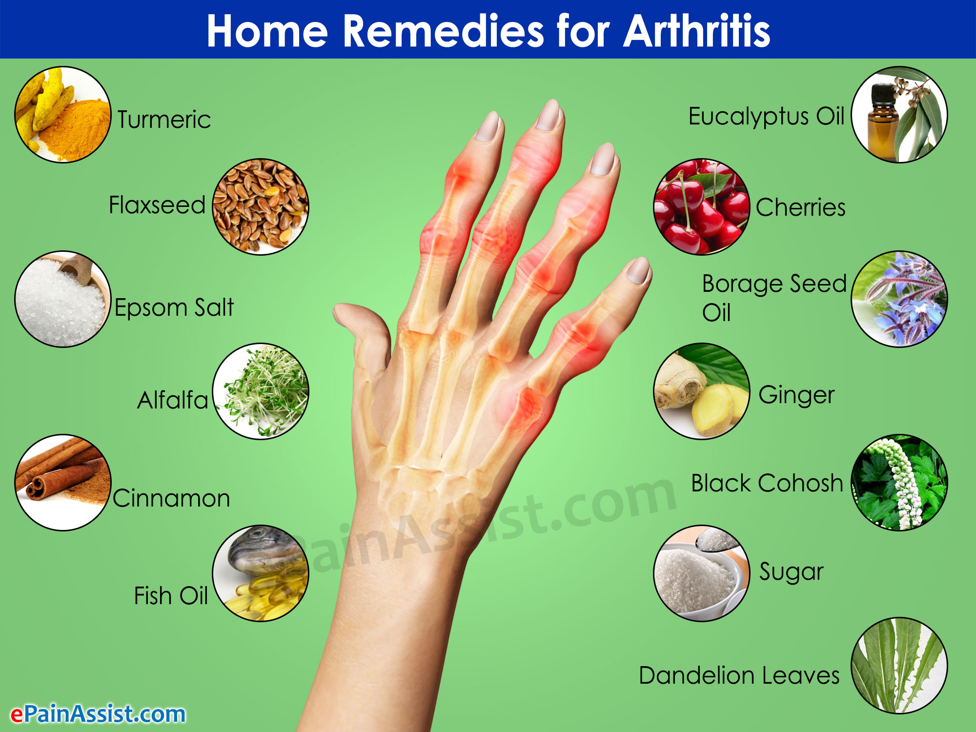Home remedies for arthritis for Fish oil for arthritis