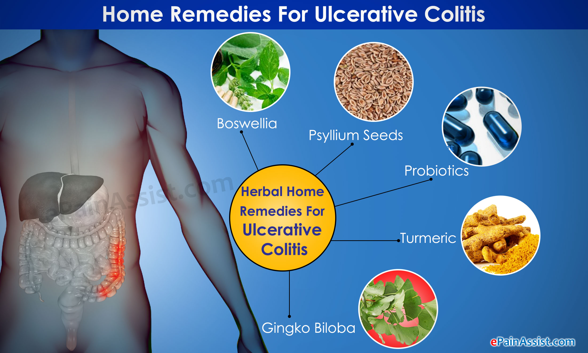 How Can I Treat Colitis Naturally