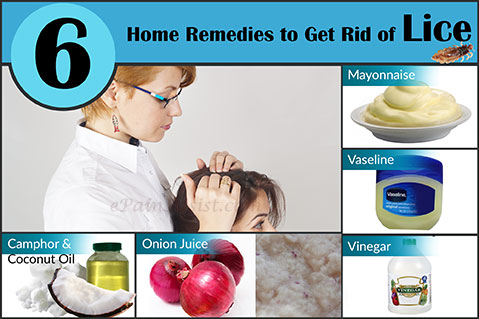 Home Remedies to Get Rid of Lice