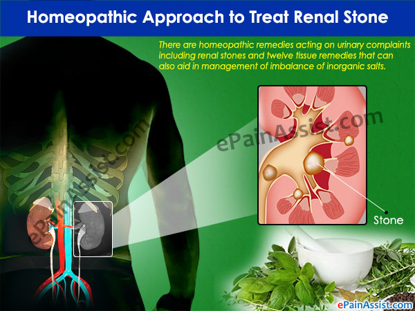 Homeopathic Approach to Treat Renal Stone