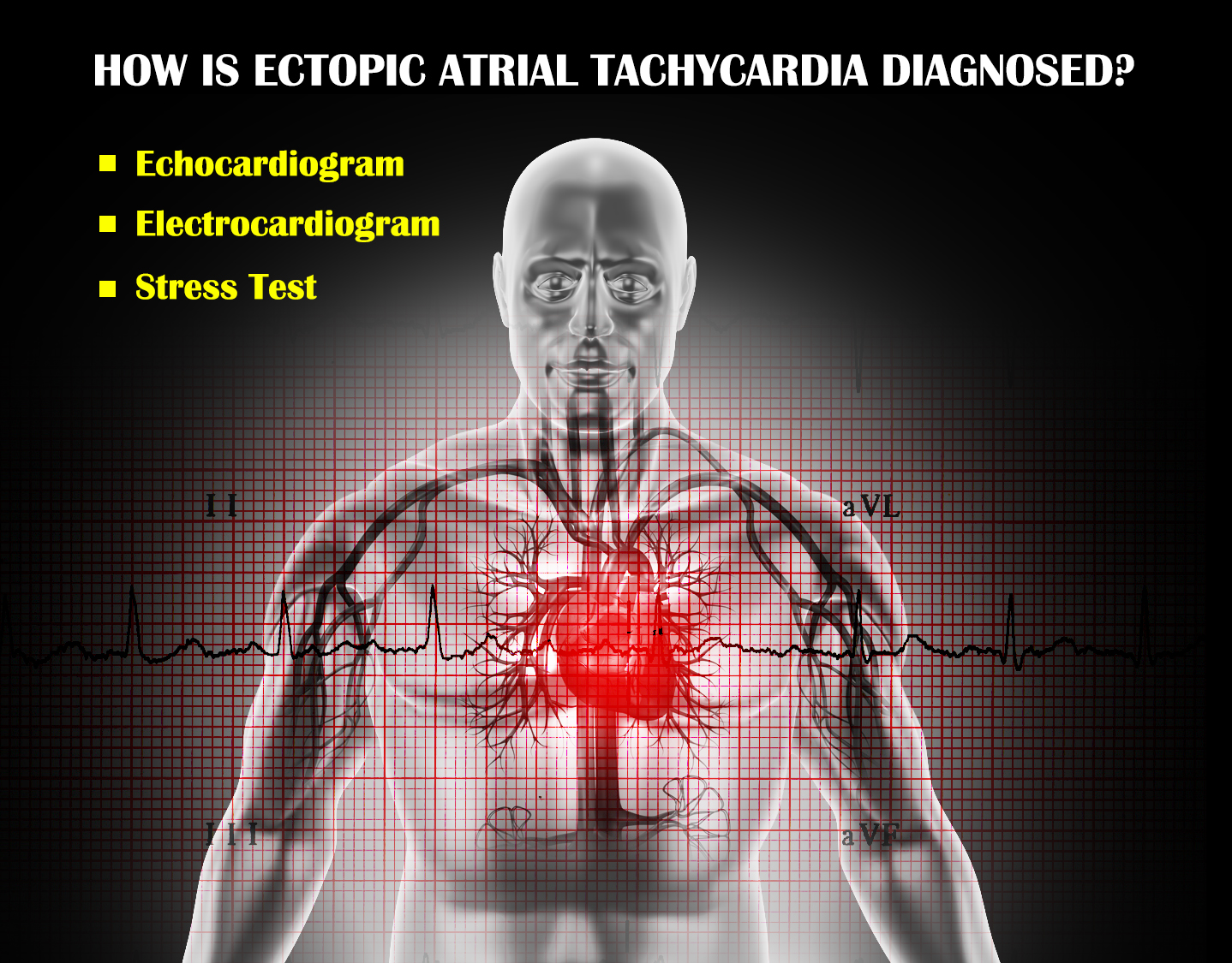 How is Ectopic Atrial Tachycardia Diagnosed
