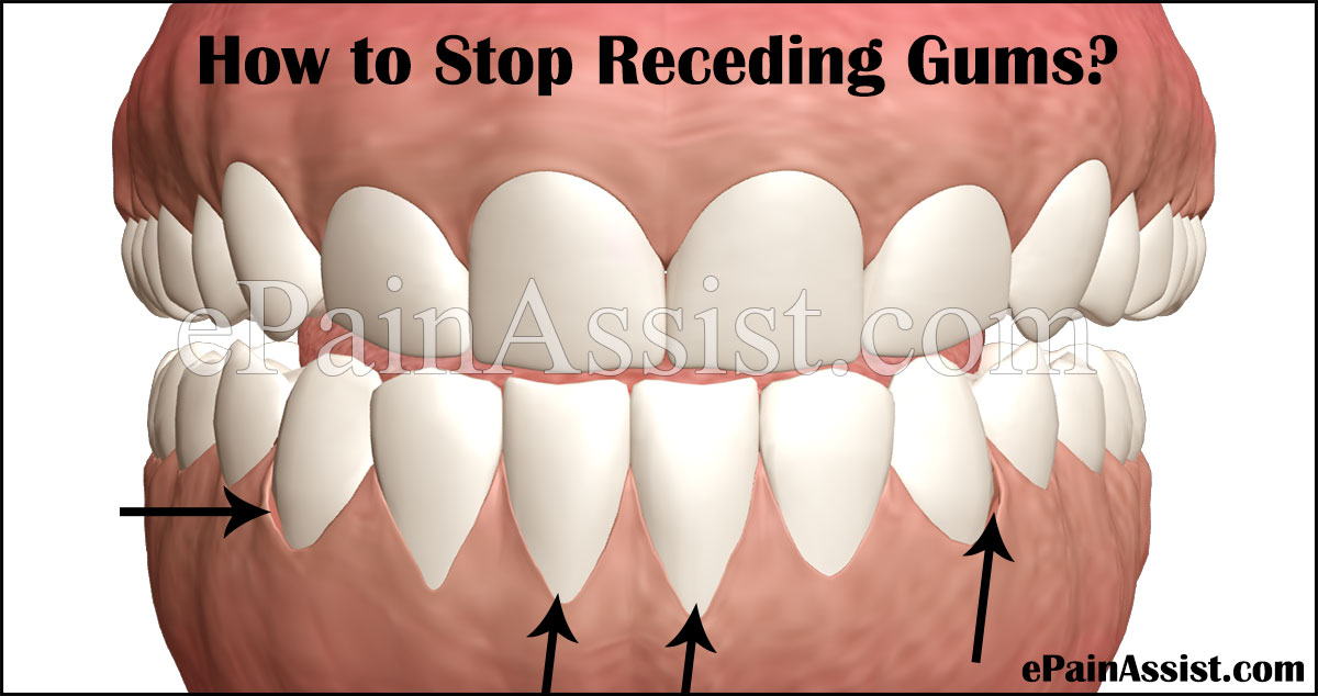 How to Stop Receding Gums
