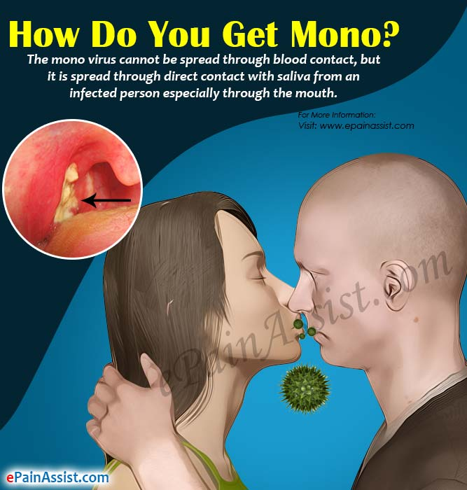 How Do You Get Mono & How Long Is It Contagious?