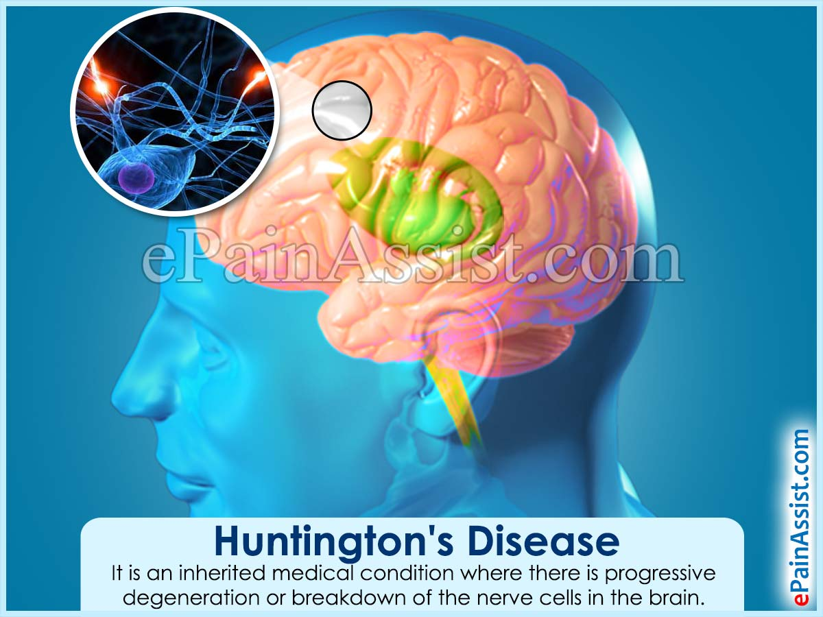 pathophysiology of huntington disease Huntington disease: huntington disease, rare hereditary neurological disease characterized by irregular and involuntary movements of the muscles and progressive loss of cognitive ability.