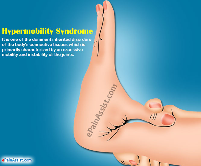 Hypermobility Syndrome