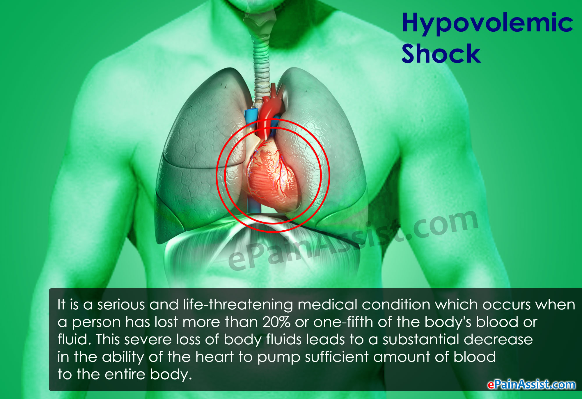 Hypovolemic Shock|Causes|Symptoms|Signs|Treatment|Prognosis