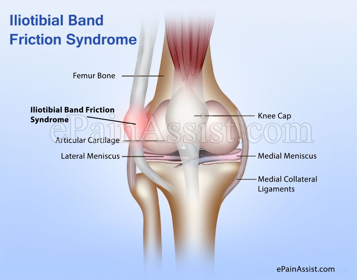 it band syndrome or iliotibial band friction syndrome (itbs or itbfs), Cephalic Vein