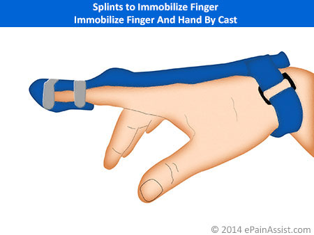 Immobilize Finger And Hand By Cast