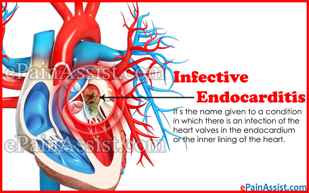 Infective Endocarditis
