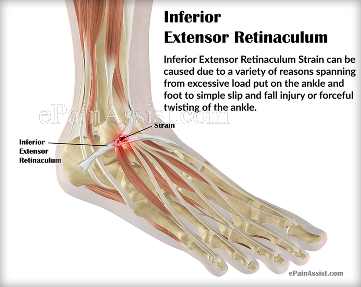 Signs and Symptoms of Inferior Extensor Retinaculum Strain