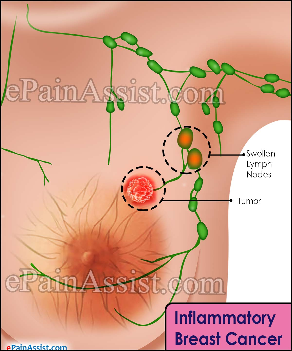 breast symptons Inflammatory cancer