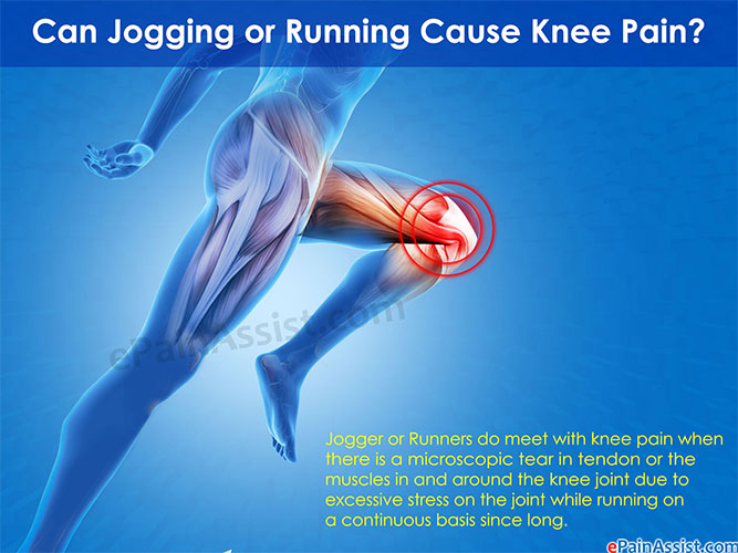 Can Jogging Or Running Cause Knee Pain