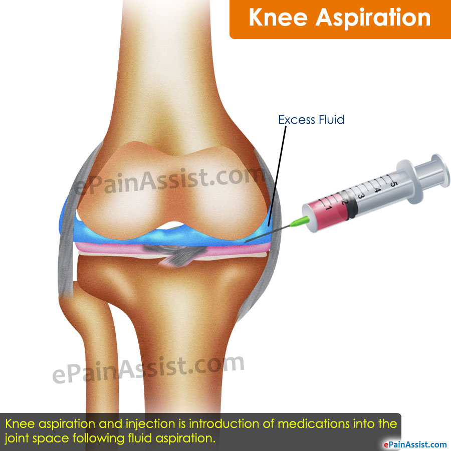knee aspiration: everything you need to know!, Human body