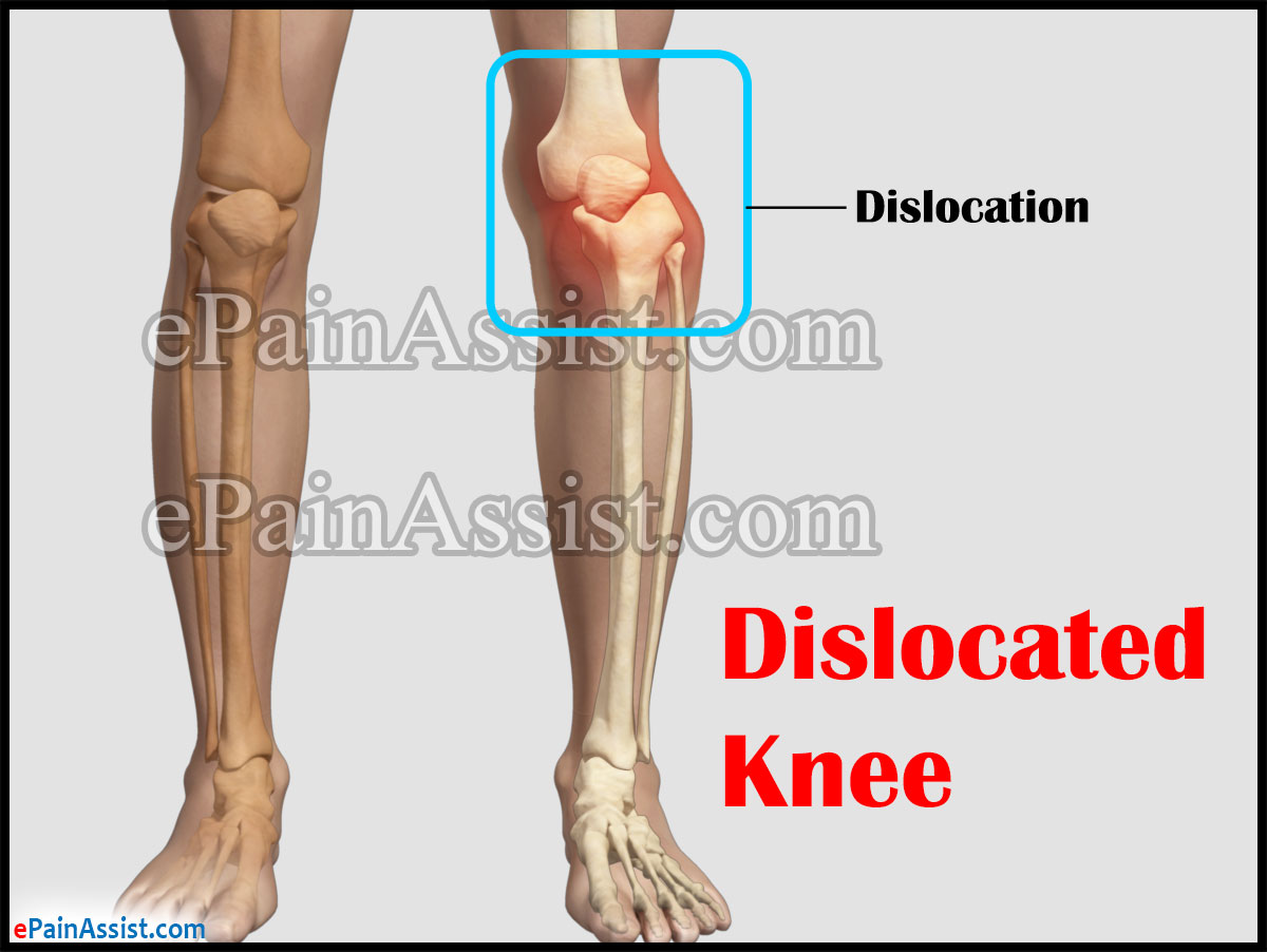 Knee Dislocation or Dislocated Knee