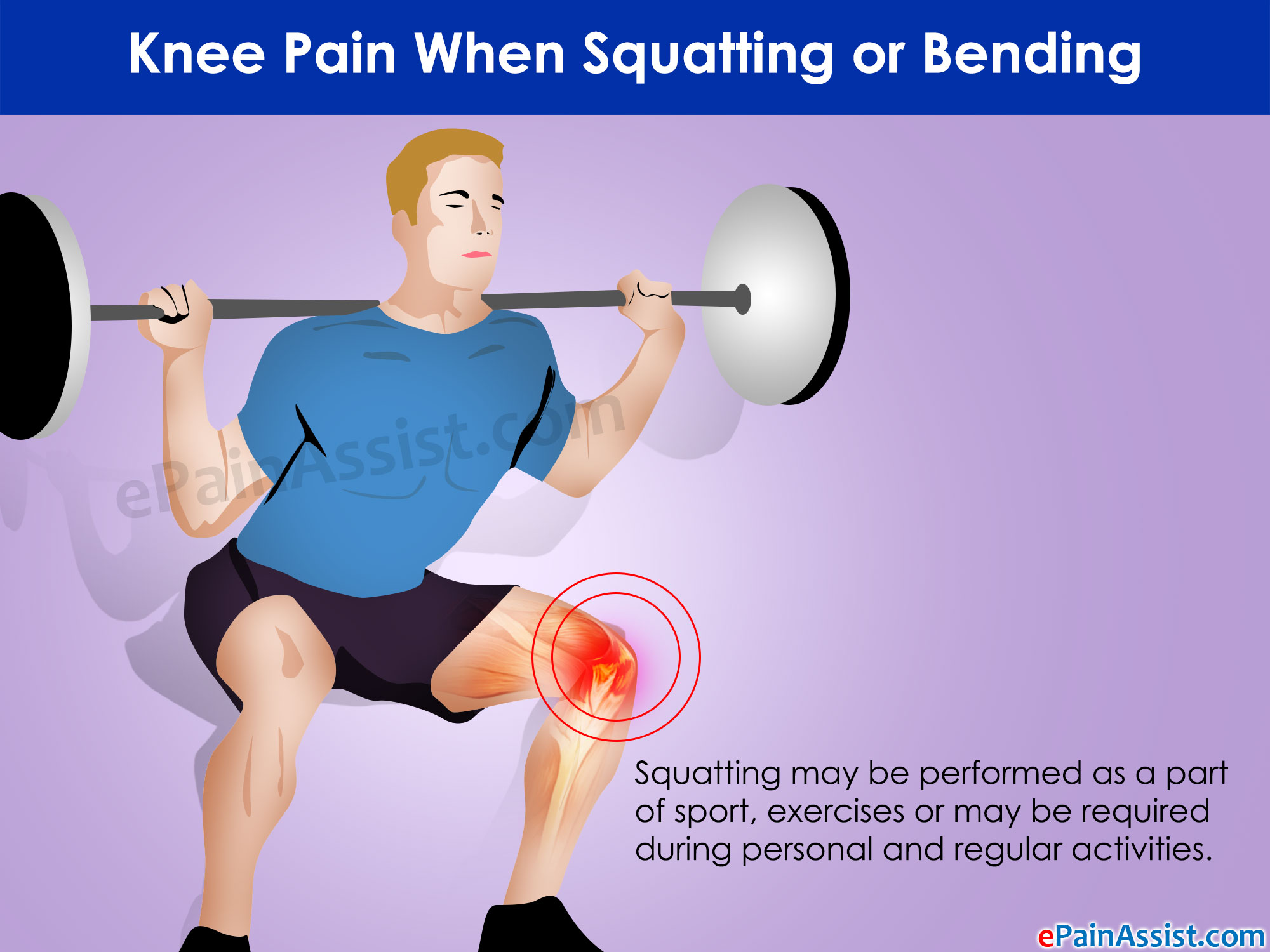 Knee Pain When Squatting or Bending