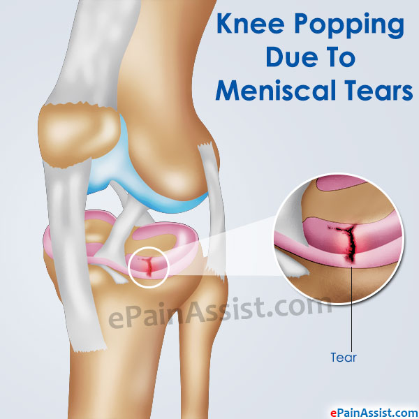 Knee Popping Due To Meniscal Tears