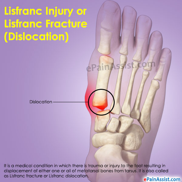 Lisfranc Injury or Lisfranc Fracture
