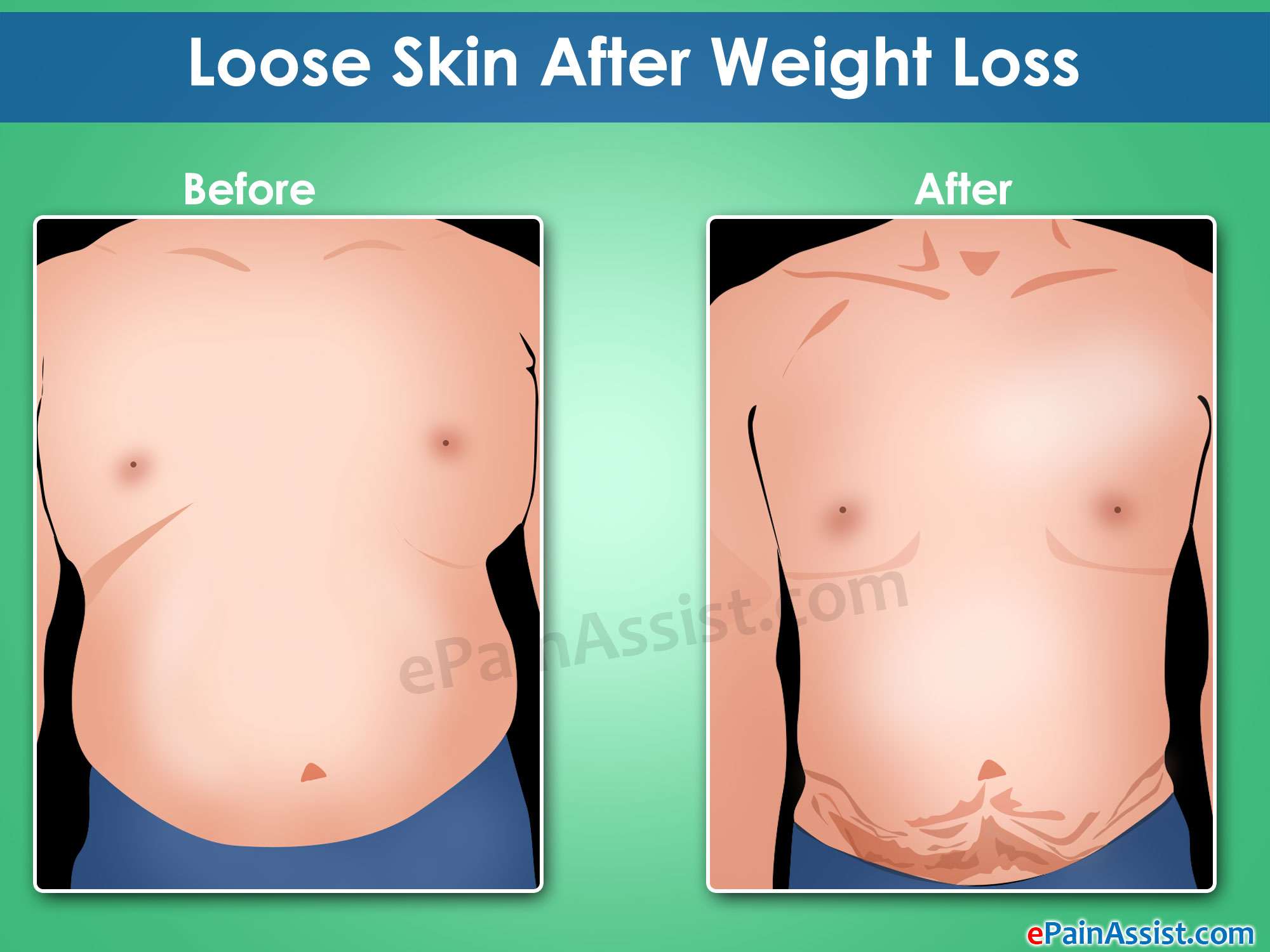 Loose Skin After Weight Loss Non Surgical Surgical Ways To Tighten