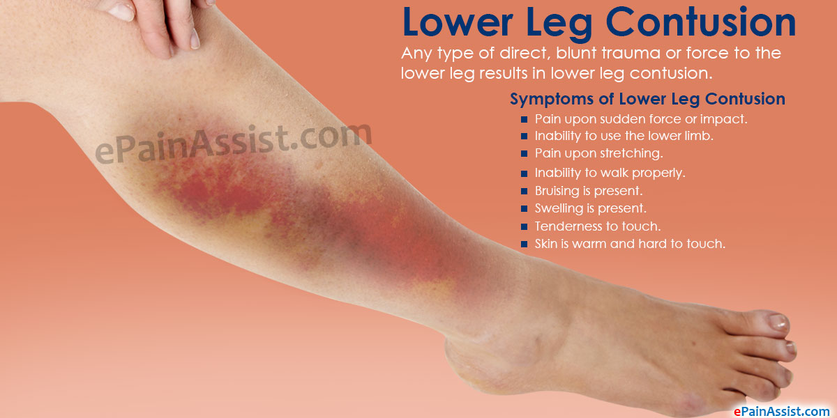 Symptoms Of Lower Leg Contusion