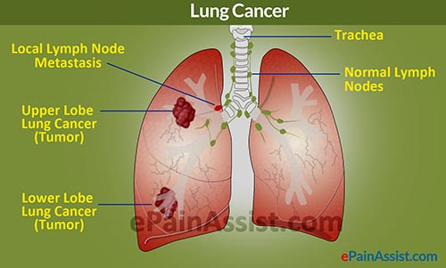Upper and Lower Lobe Lung Tumor