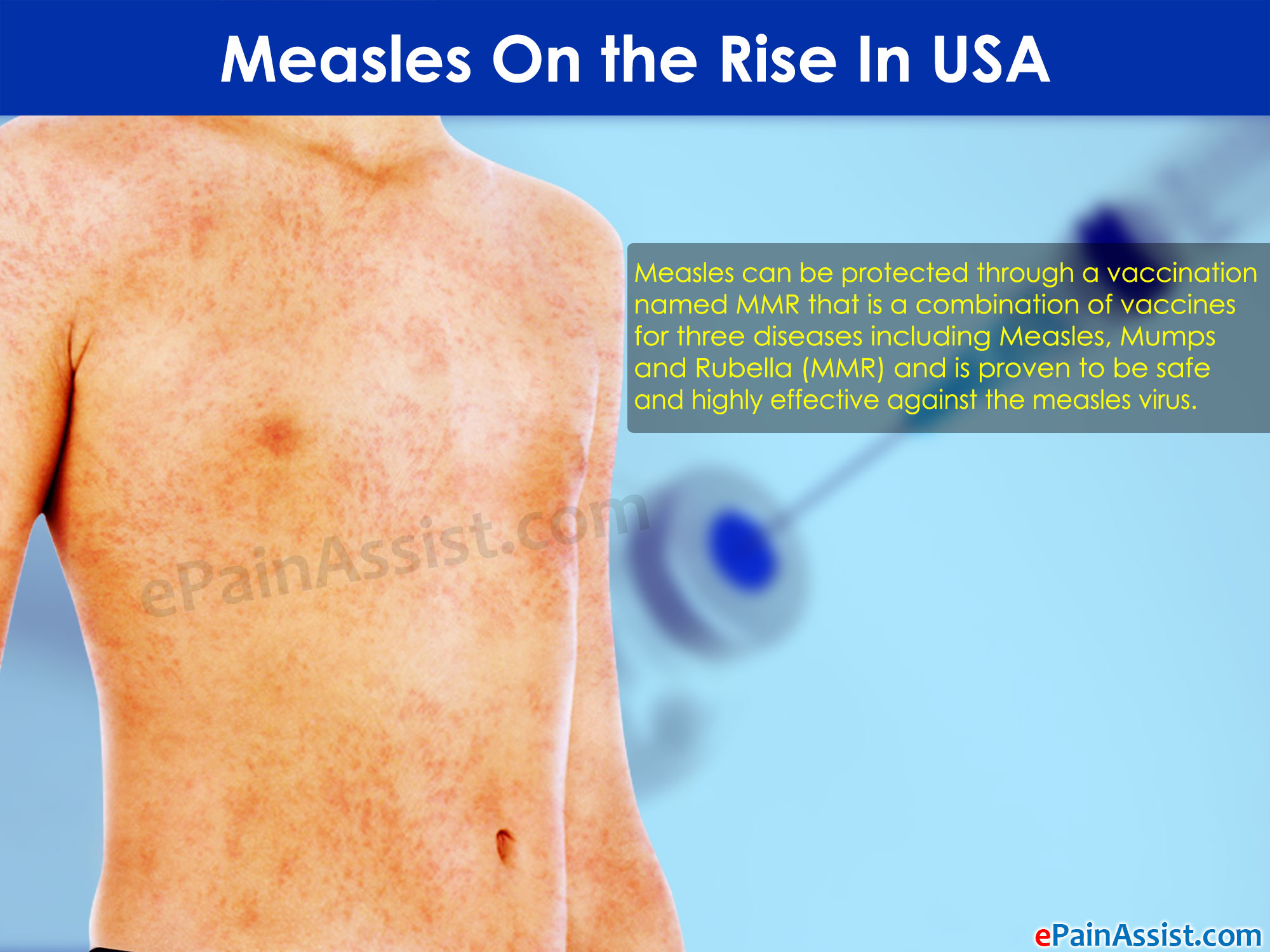 Measles On the Rise In USA