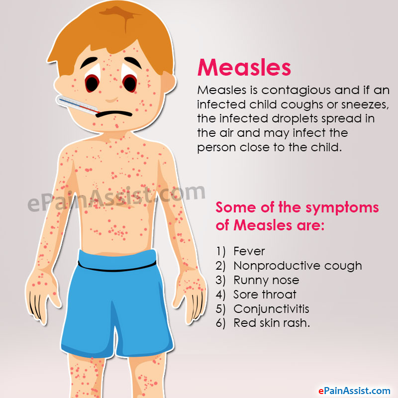 German Measles Natural Treatment