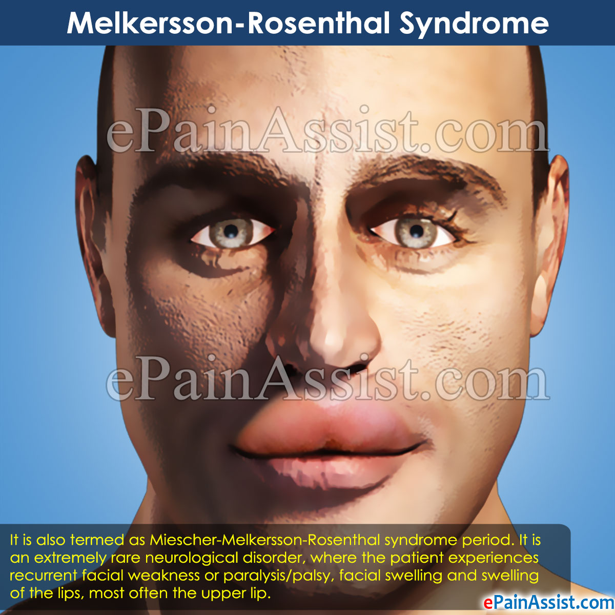 Melkersson-Rosenthal Syndrome