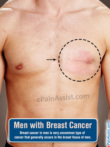 lumps Male breast hormone