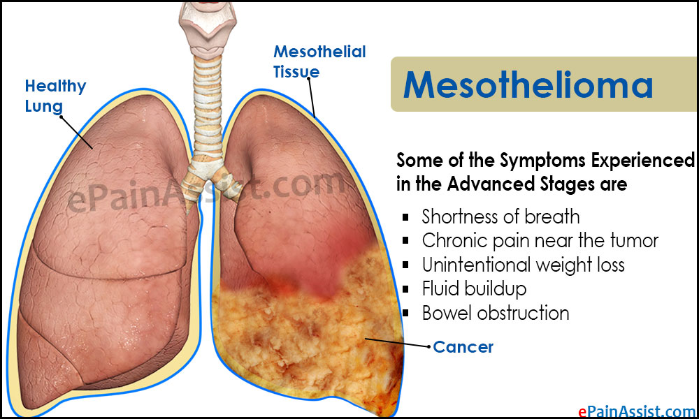 Mesothelioma: Causes, Who Is At Risk, Types, Symptoms, Diagnosis