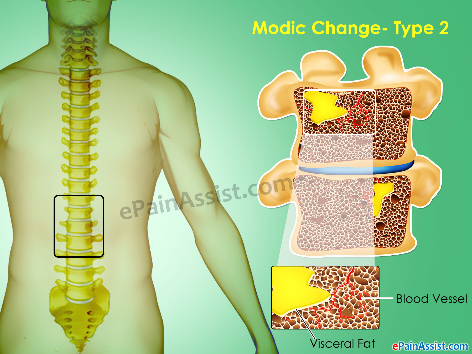 Modic Changes Type 2