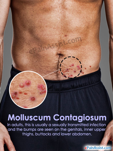 Molluscum Contagiosum: Causes, Symptoms, Treatment & Pictures