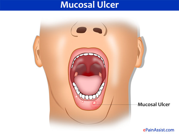 Burning Pain or Burning Sensation Due to Mucosal Ulcer